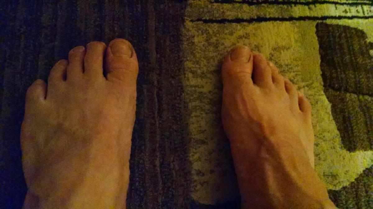 Blisters (not!)